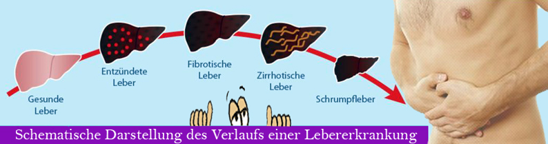 Leber Leber-Liga